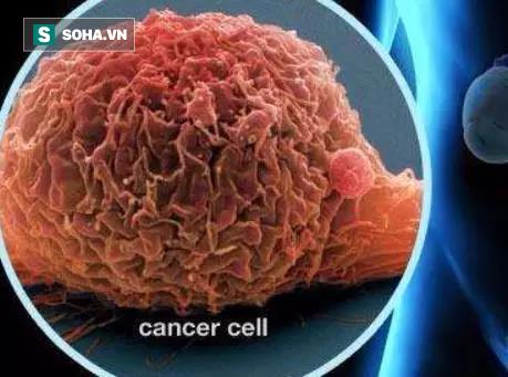 BS cảnh báo ung thư bàng quang đã gặp ở người trẻ: Đi tiểu gặp dấu hiệu này phải khám ngay - Ảnh 1.