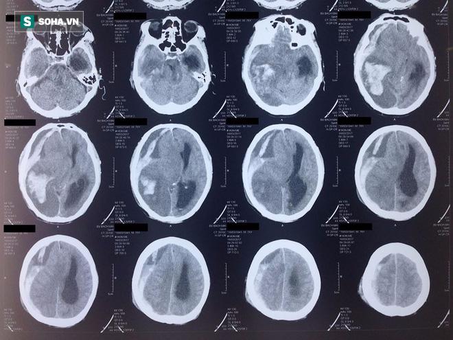 Bệnh xuất huyết não của nghệ sĩ Khánh Nam nguy hiểm như thế nào? - Ảnh 3.