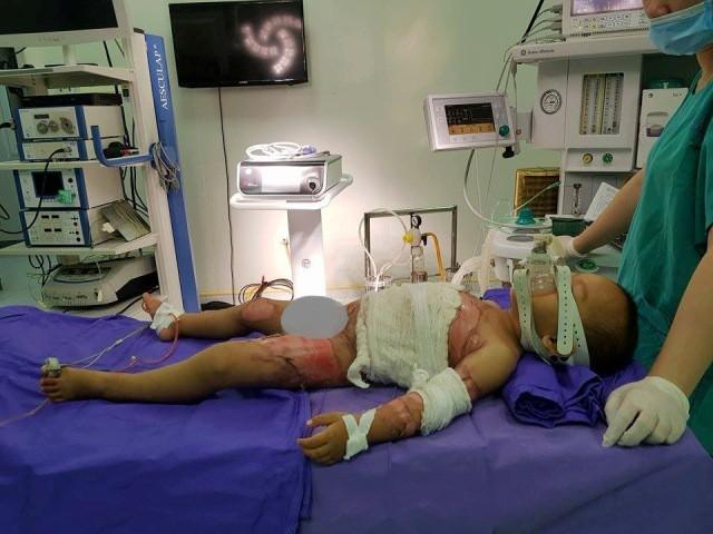 Bé trai 2 tuổi bị bỏng nước sôi thương tâm - Ảnh 2.