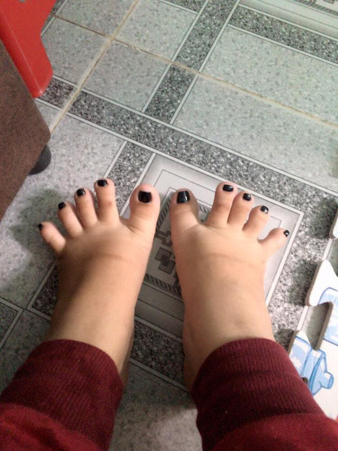 Đôi bàn chân có hình dáng nửa nhân sâm nửa bánh mỳ khiến cư dân mạng thích thú - Ảnh 1.