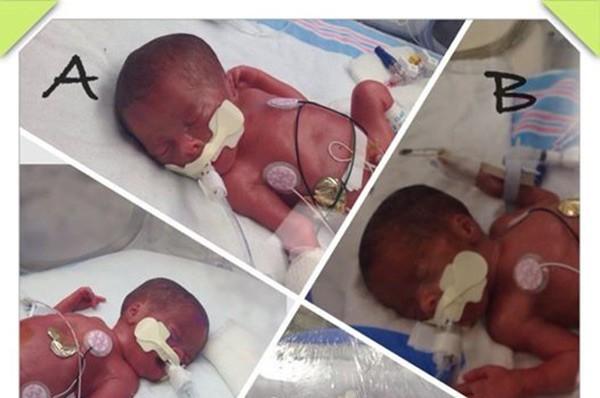 Bà mẹ 42 tuổi được chẩn đoán sinh ba, đến ngày sinh, điều bất ngờ đến nín thở đã xảy ra - Ảnh 1.