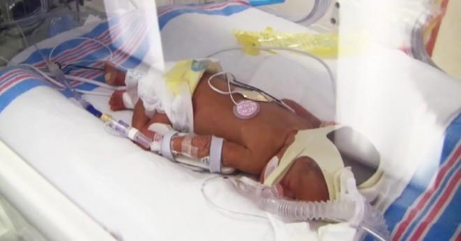 Bà mẹ 42 tuổi được chẩn đoán sinh ba, đến ngày sinh, điều bất ngờ đến nín thở đã xảy ra - Ảnh 2.