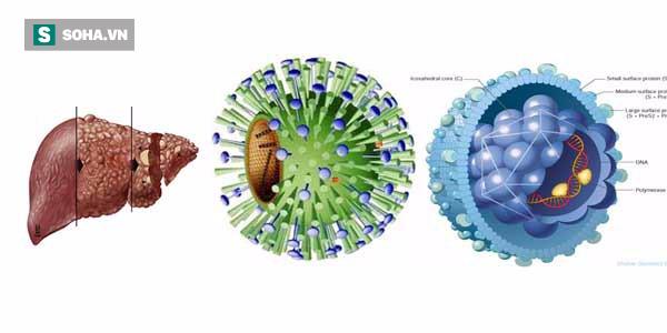 4 việc cần làm ngay khi người bạn đời bị nhiễm viêm gan B - Ảnh 1.