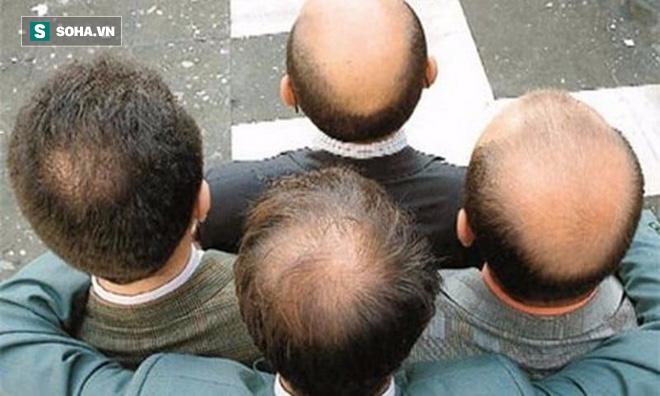 Cứu cánh cho người hói: Hàn Quốc đã tạo ra chất làm tóc mọc trở lại! - Ảnh 1.