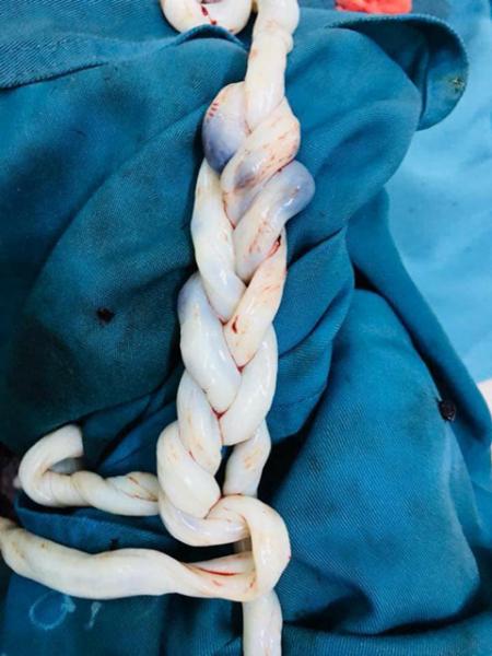 Kỳ lạ dây rốn đan vào nhau như tết tóc của cặp song sinh - Ảnh 1.