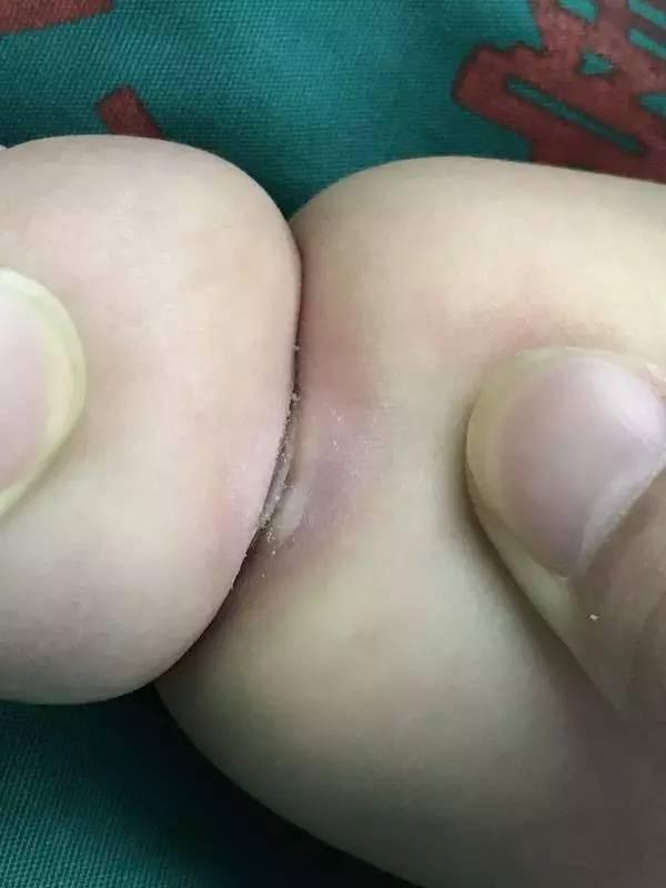 Con mới sinh tay chân đã có nhiều ngấn, bố toát mồ hôi khi bác sĩ nói để muộn phải cắt bỏ - Ảnh 3.