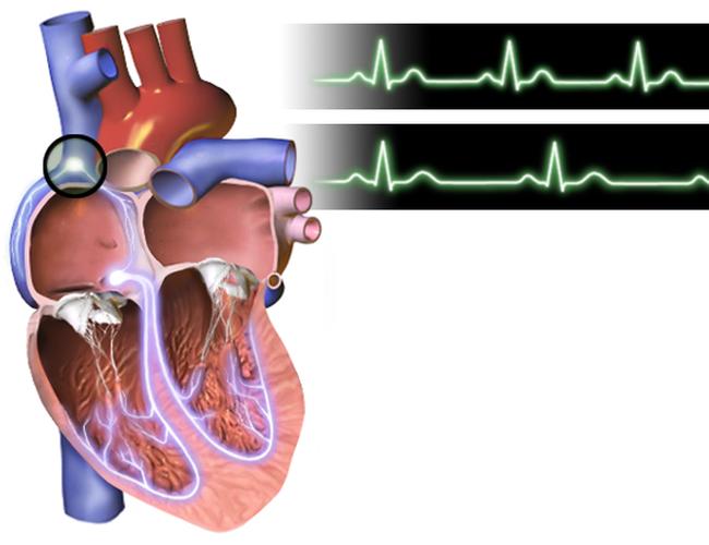 Ranh giới sinh tử của người bị huyết áp chính là ăn uống, lối sống: Đây là phao cứu sinh - Ảnh 5.
