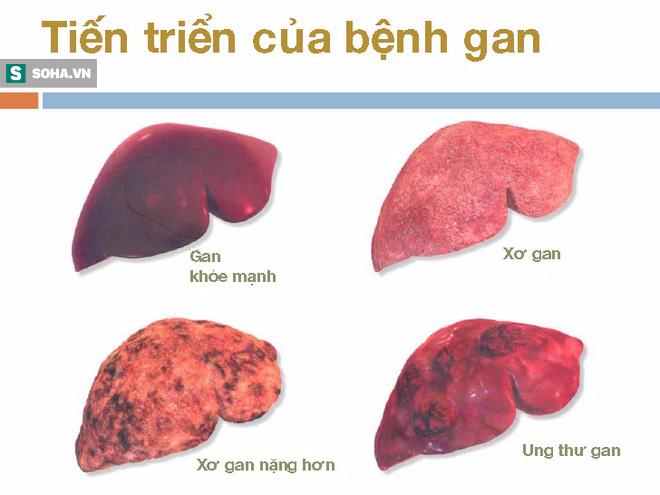 70 - 80% ca mắc ung thư gan xuất phát từ nguyên nhân này, hãy phòng tránh ngay từ hôm nay - Ảnh 1.