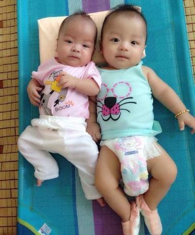 Ghép tế bào gốc cứu sống ngoạn mục bé trai sinh non bị xơ phổi - Ảnh 1.