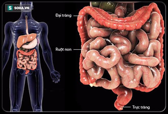 80% người phát hiện mắc ung thư đại tràng ở giai đoạn cuối chỉ vì không làm việc này sớm - Ảnh 2.