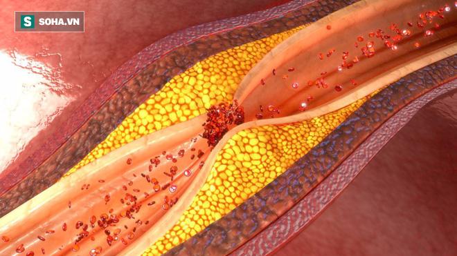 Mạch máu bị tắc có thể gây nguy hiểm tính mạng, dấu hiệu nào giúp bạn nhận biết sớm? - Ảnh 1.