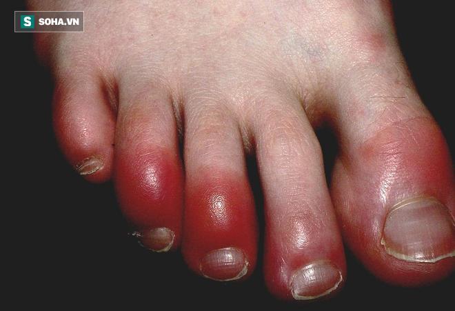 Căn bệnh mùa đông nhiều người mắc sẽ nguy hiểm tính mạng nếu có 4 dấu hiệu nhiễm trùng sau - Ảnh 1.