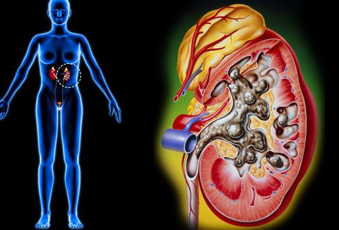 Lý giải những nguyên nhân gây đau bụng dưới ở phụ nữ - Ảnh 11.