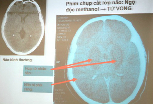 Báo động nhiều người mắc ung thư, teo não vì uống rượu - Ảnh 3.