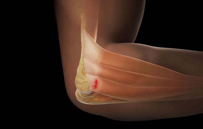 Triệu chứng tê bại ở tay không hẳn do thiếu canxi mà có thể xuất phát từ 10 nguyên nhân không ngờ - Ảnh 3.