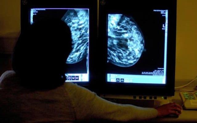 Chương trình máy tính cho phép phát hiện ung thư sớm nhất có thể, từ khi triệu chứng chưa xuất hiện, không cần phẫu thuật - Ảnh 3.