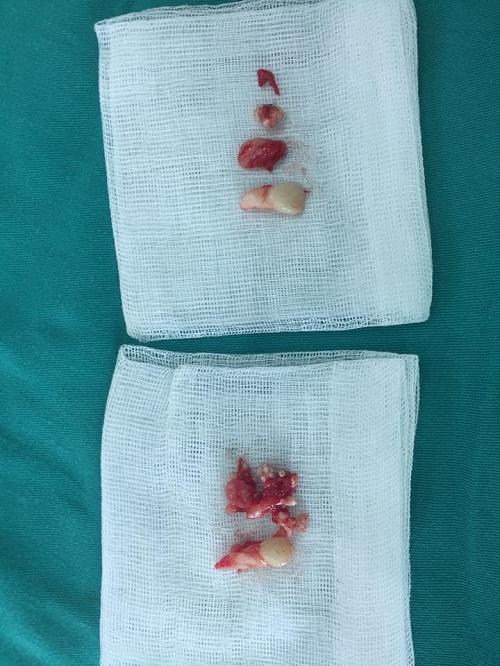 14 tuổi vẫn còn răng sữa, đi khám phát hiện u răng với hàng chục chiếc răng nhỏ - Ảnh 3.