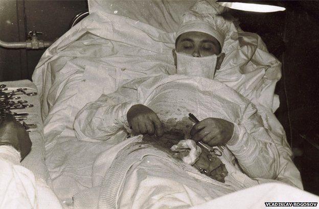 Đây là câu chuyện đằng sau bức ảnh vị bác sĩ người Nga tự phẫu thuật ruột thừa cho chính mình - Ảnh 3.