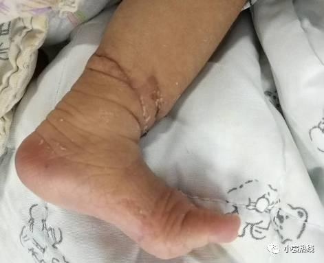 Em bé suýt phải cưa chân vì gặp phải hội chứng hiếm gặp trong thai kỳ - Ảnh 3.