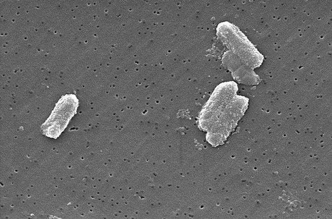 Chín loại vi khuẩn kháng kháng sinh nguy hiểm nhất - Ảnh 3.