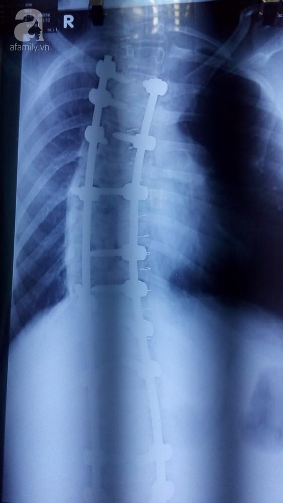 TP.HCM: Cột sống ngực vẹo 111 độ, lưng bé gái 12 tuổi cong như hình chữ S - Ảnh 2.