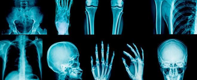 Phát hiện một gia đình không biết đau là gì do mang loại đột biến gen cực lạ - Ảnh 2.