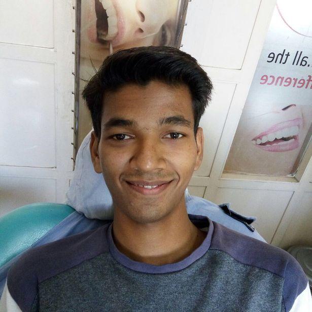 Đến bệnh viện nhổ răng, chàng trai khiến bác sĩ sốc nặng khi lấy ra thứ này - Ảnh 4.
