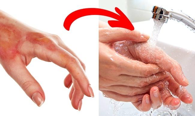 6 cách sơ cứu khi bị thương có thể gây tổn hại nghiêm trọng sức khoẻ của bạn - Ảnh 3.