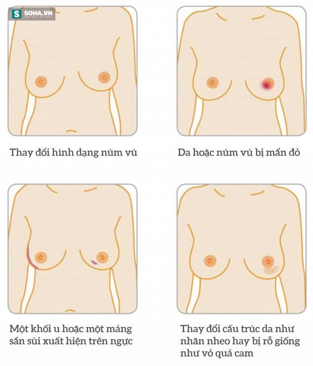 Từ đốm nhỏ màu hồng trên da đến ung thư giai đoạn cuối: Đừng chủ quan dù là 1 dấu hiệu nhỏ - Ảnh 3.