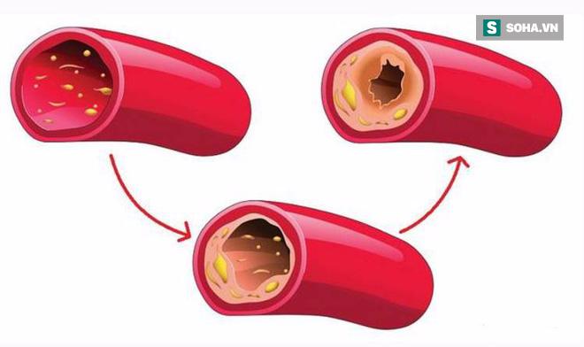 Mạch máu tắc thì tuổi thọ ngắn: Giải pháp hiệu quả để thông tắc huyết quản bạn nên áp dụng - Ảnh 1.