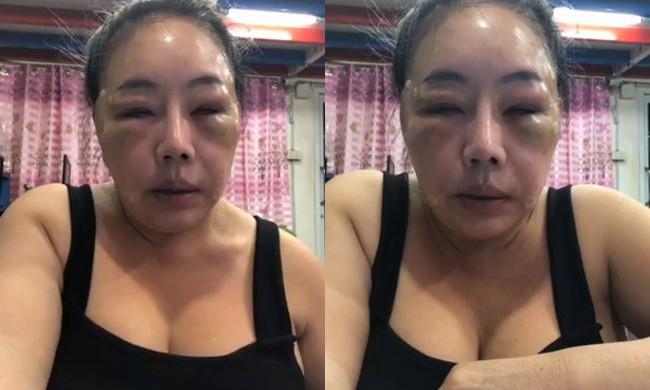 Nữ đại gia Thái Lan đổi chồng như thay áo năm nào gây sốc với gương mặt sưng vù vì bị chồng mới đánh đập? - Ảnh 1.
