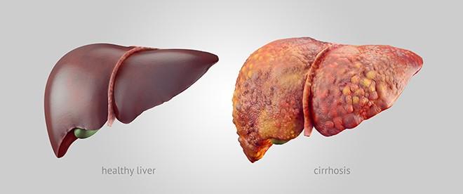 Có 7 triệu chứng này kéo dài 2 tuần: Hãy đi khám ung thư gan để giữ cơ hội sống cao nhất - Ảnh 1.