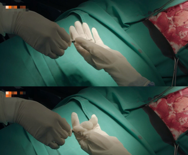 Nhặt sạn level bác sĩ: Phát hiện 6 hạt sạn y học đáng tiếc trong Hậu Duệ Mặt Trời bản Việt - Ảnh 11.