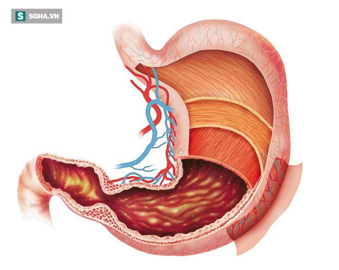 Viêm dạ dày lâu ngày có thể dẫn tới ung thư: Phát hiện và chữa kịp thời nhờ 8 dấu hiệu - Ảnh 1.