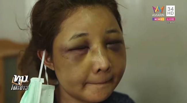 Sốc với gương mặt biến dạng trầm trọng của mẹ trẻ xinh đẹp bị chồng đánh vì trót để người yêu cũ đưa về nhà - Ảnh 4.