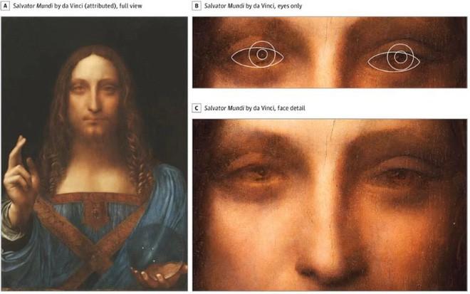 Leonardo da Vinci trở thành danh họa vĩ đại vì mang tật lác mắt hiếm gặp? - Ảnh 2.