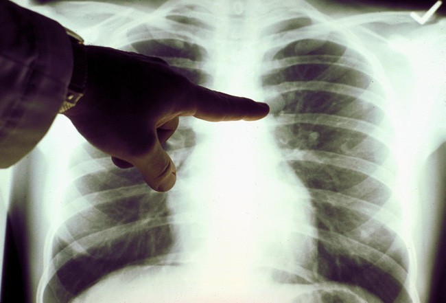 Cẩn trọng với những bệnh nguy hiểm chết người nhưng lại không có triệu chứng rõ ràng và dễ bị bỏ qua - Ảnh 5.