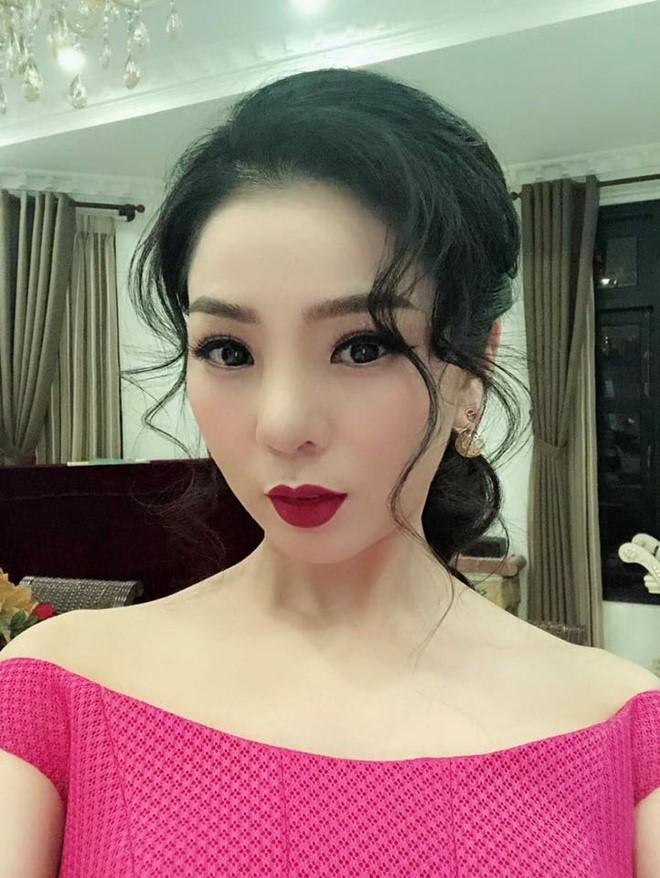 Lệ Quyên và nhiều sao Việt gặp biến chứng vì phẫu thuật thẩm mỹ - Ảnh 2.