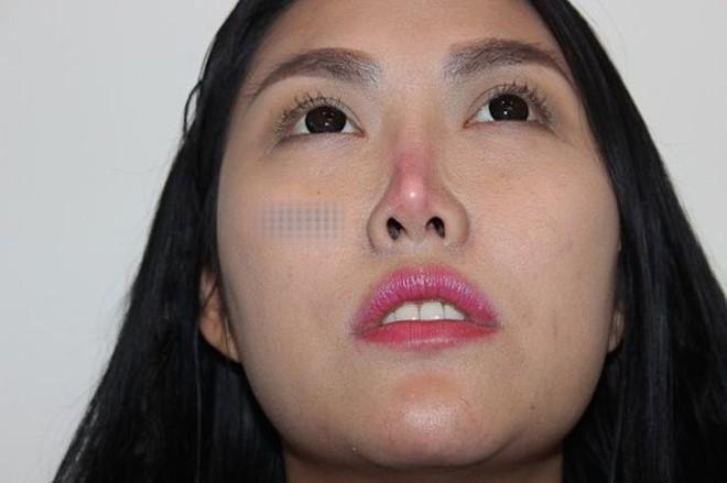 Lệ Quyên và nhiều sao Việt gặp biến chứng vì phẫu thuật thẩm mỹ - Ảnh 3.