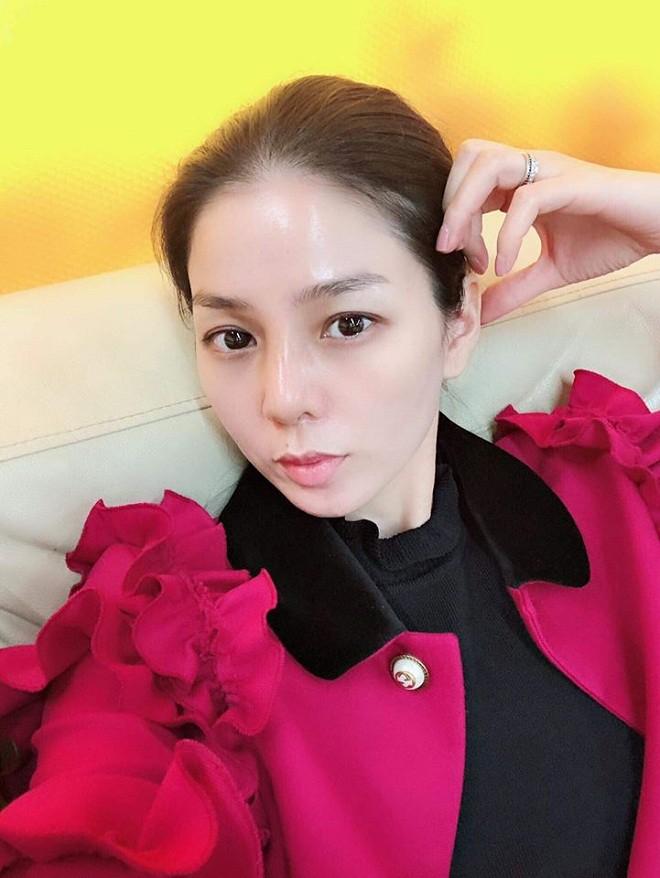 Lệ Quyên và nhiều sao Việt gặp biến chứng vì phẫu thuật thẩm mỹ - Ảnh 1.