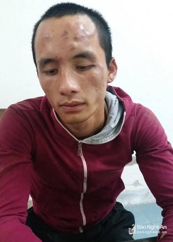 Dùng dao đe dọa cảnh sát khi bị vây bắt do trộm chó  - Ảnh 2.