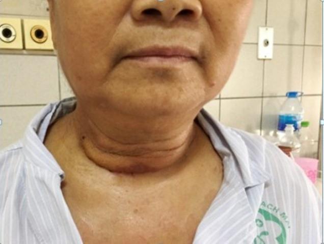 Bướu giáp khổng lồ chui sâu vào lồng ngực cụ bà suốt 10 năm, gây khó thở nặng - Ảnh 3.