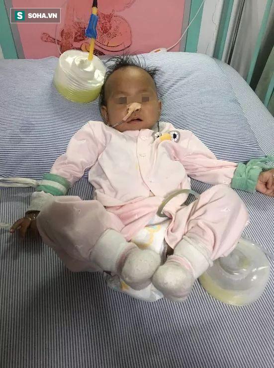 Bé gái 15 tháng tuổi bị bục dạ dày vì ăn ngô: 6 nhóm người này không nên ăn ngô - Ảnh 2.