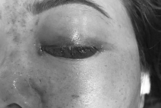 Chủ tiệm spa bị phạt tiền vì tiêm filler gây mù mắt - Ảnh 1.