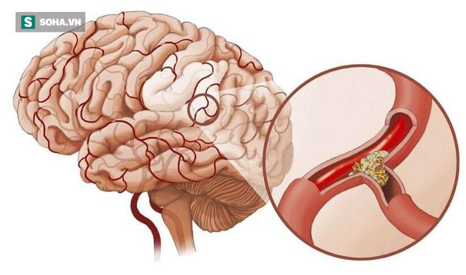 BS cảnh báo: 4 dấu hiệu cho thấy mạch máu đang dần bị tắc, xử lý ngay để tránh nguy hiểm - Ảnh 1.