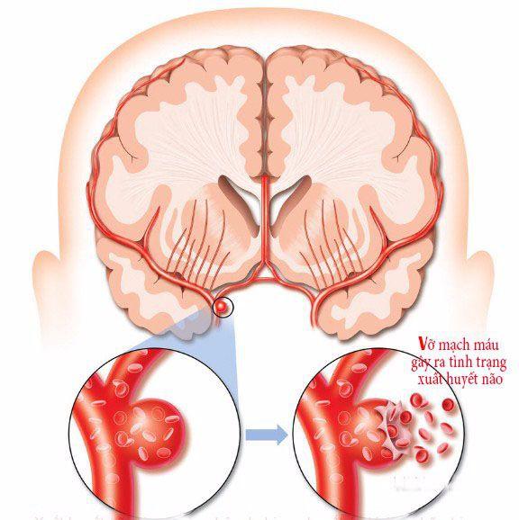 5 tuổi đột quỵ, 8 tuổi đã phải đặt stent: Lời cảnh báo về bệnh lý nguy hiểm ít người biết - Ảnh 1.
