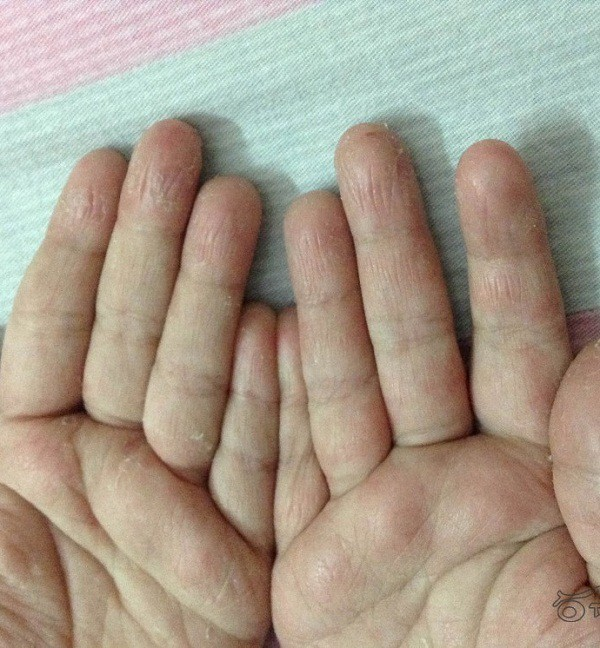 Tróc da bàn tay, bệnh gì? - Ảnh 1.