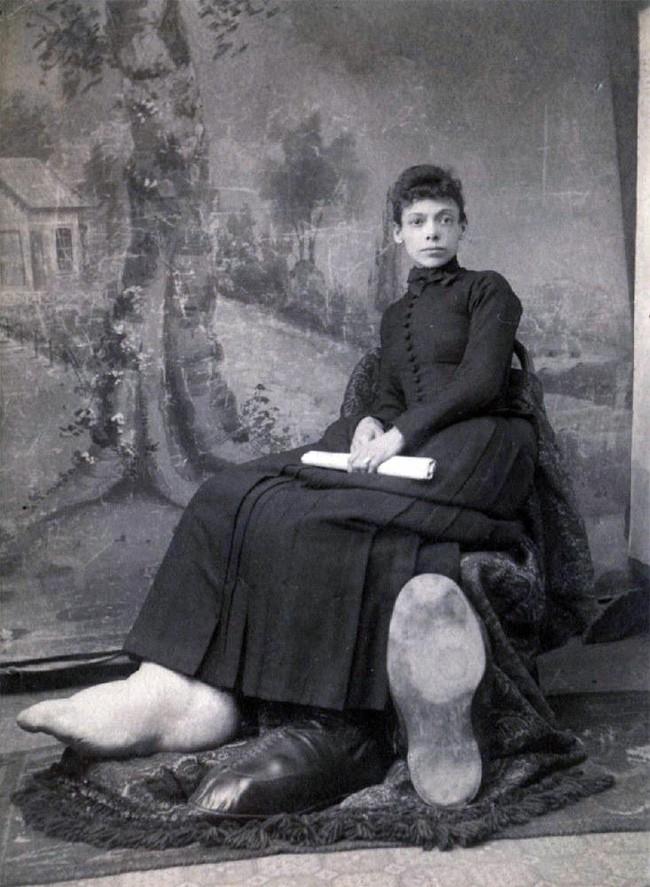 Bí mật cuộc sống của người phụ nữ chân to nhất thế giới, kiếm bộn tiền vì chân khổng lồ nhưng chết cũng vì chân - Ảnh 3.