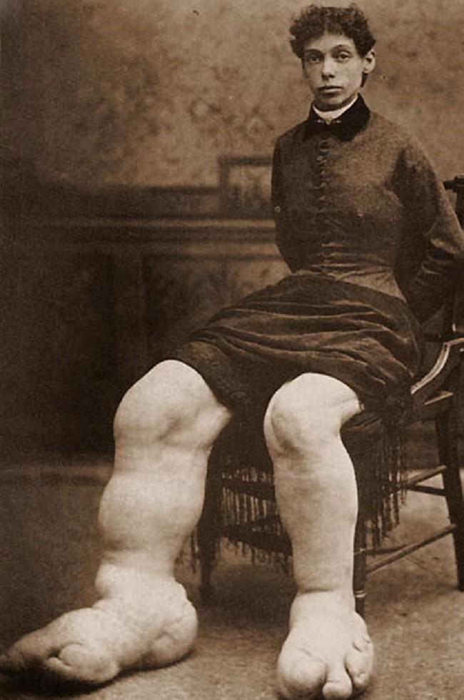 Bí mật cuộc sống của người phụ nữ chân to nhất thế giới, kiếm bộn tiền vì chân khổng lồ nhưng chết cũng vì chân - Ảnh 5.