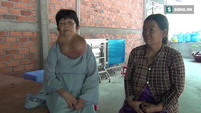 Người phụ nữ ở Tiền Giang mang bướu cổ khủng 5 kg gần 30 năm - Ảnh 1.